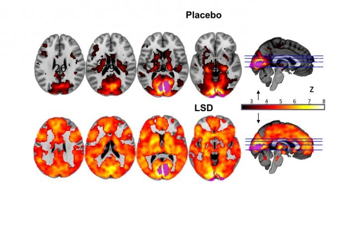 In subject who took LSD, brain activity was heightened in regions associated with vision and memory, compared to subjects who took a placebo. | Image Source: Imperial College London
