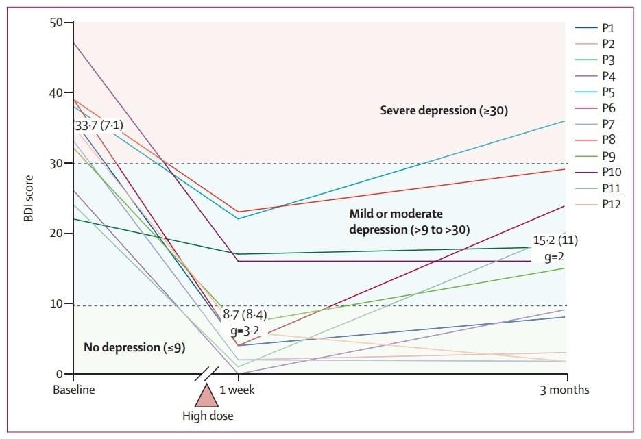 psilocybin treatment-resistant depression