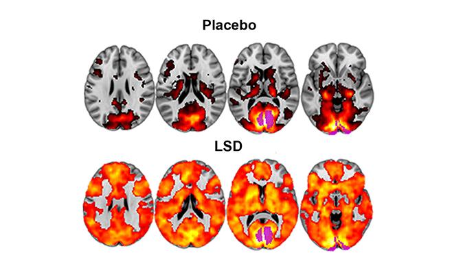 LSD brain imaging